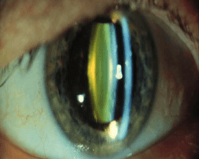 Početna katarakta