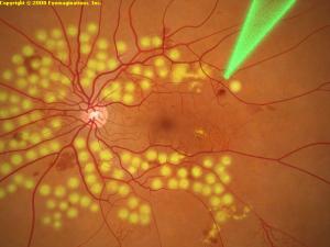 lecenje-dijabetesne-retinopatij
